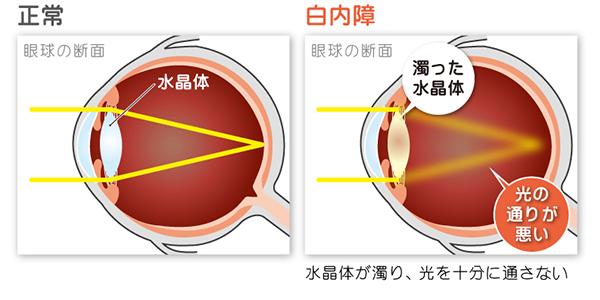 白内障にかかると水晶体が濁り、光を通さなくなります。