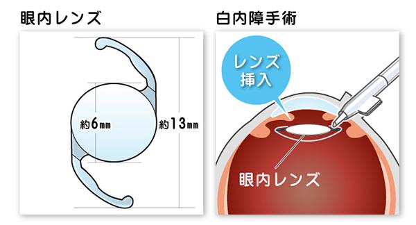 眼内レンズを挿入する手術です。