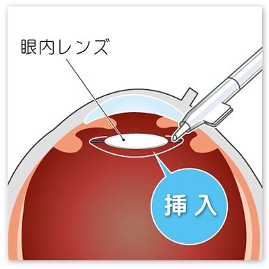 【画像】眼内レンズの挿入