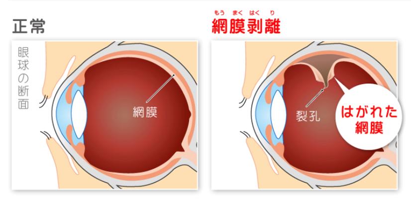 網膜が引っ張られるなどの理由で剥がれてしまった状態が網膜剥離です
