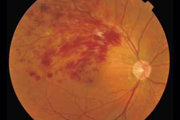 網膜静脈分枝閉塞症